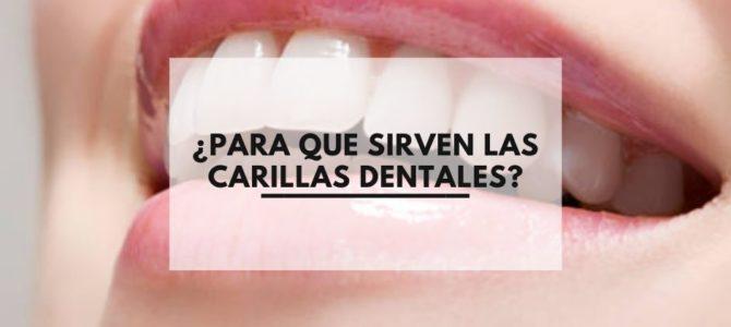 ¿Para que sirven las carillas dentales?